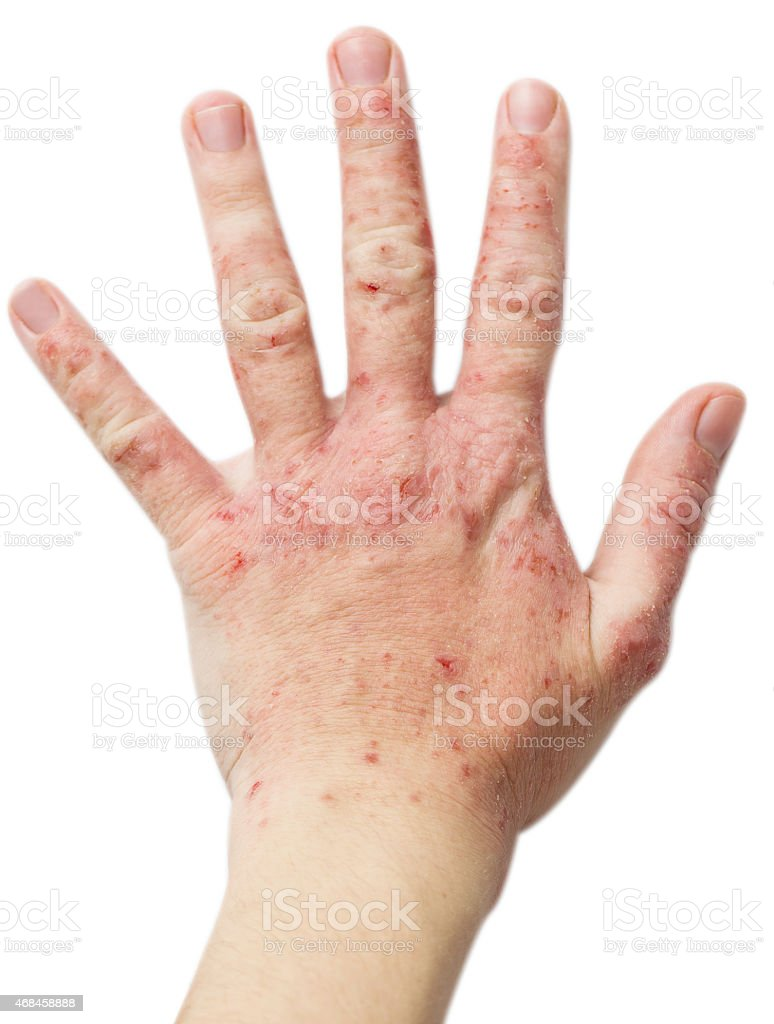 Eczema on a female hand stock photo