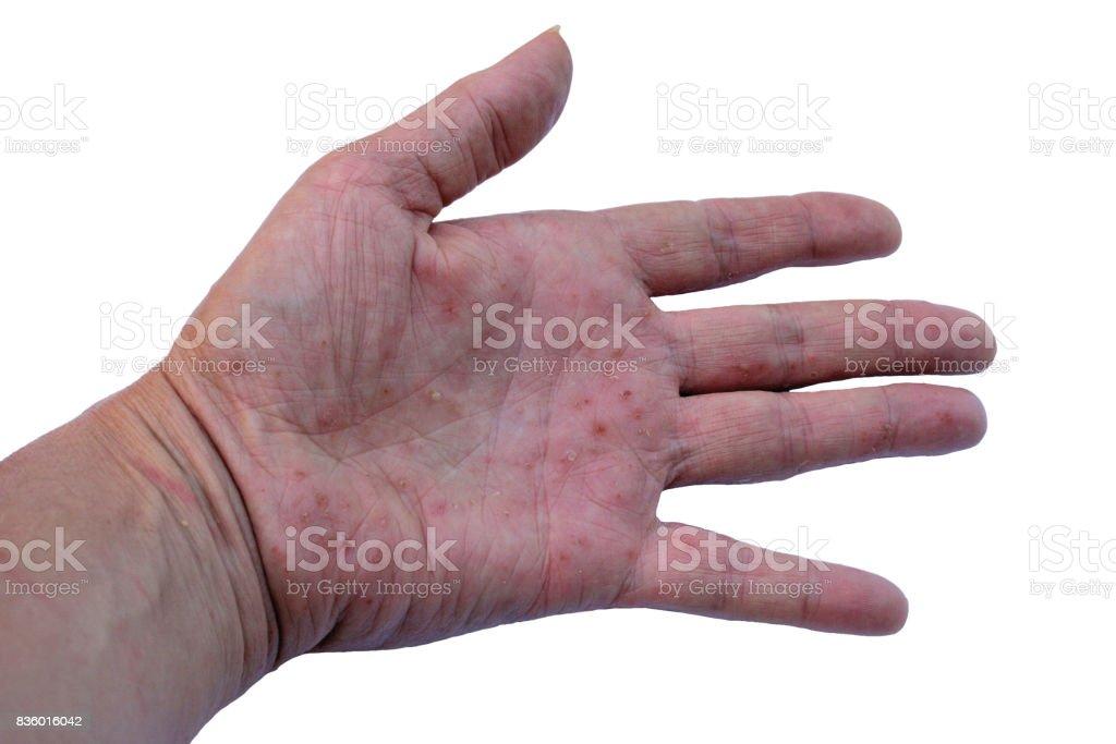 Eczema stock photo