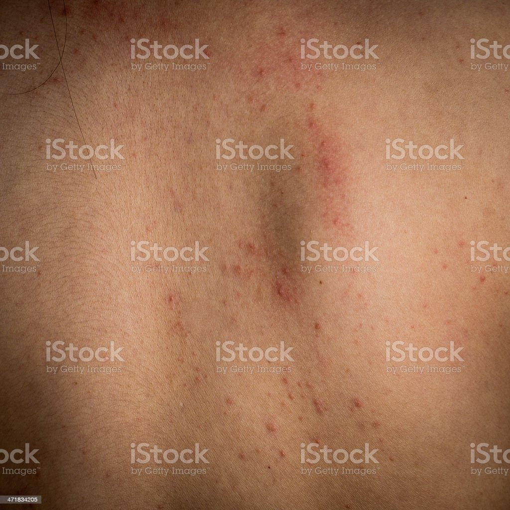 eczema skin of back detail texture royalty-free stock photo