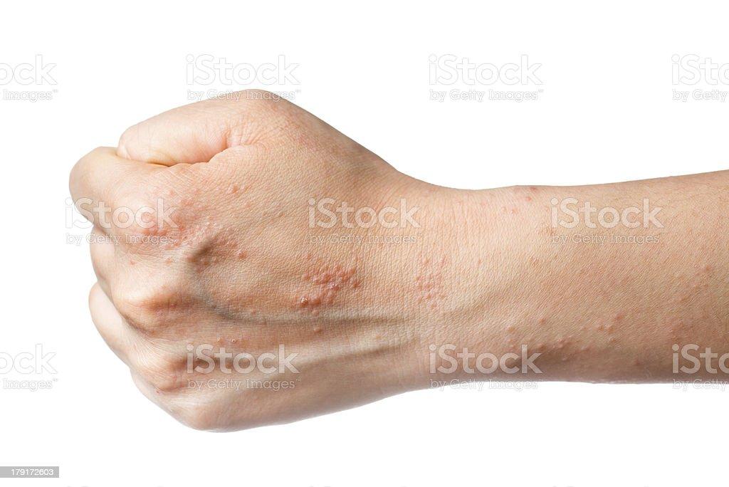 eczema skin on hand stock photo