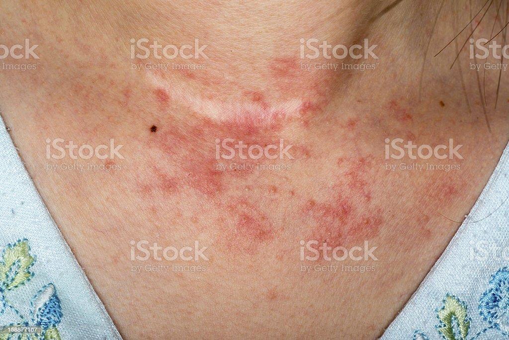 eczema skin on neck stock photo