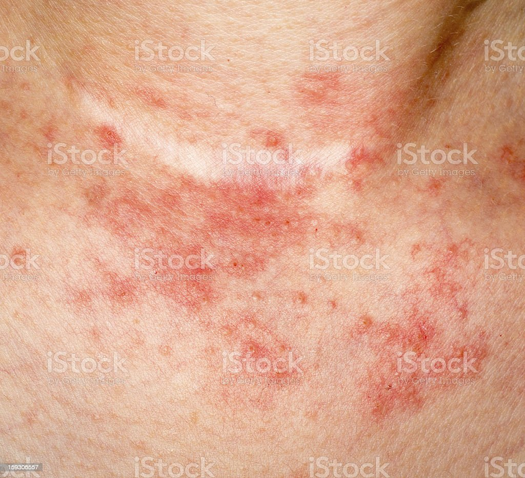 eczema skin on neck stock photo