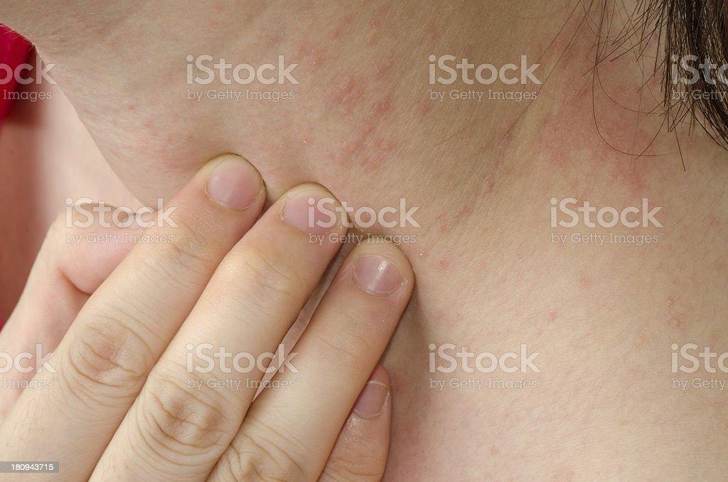 eczema Haut am Hals – Foto