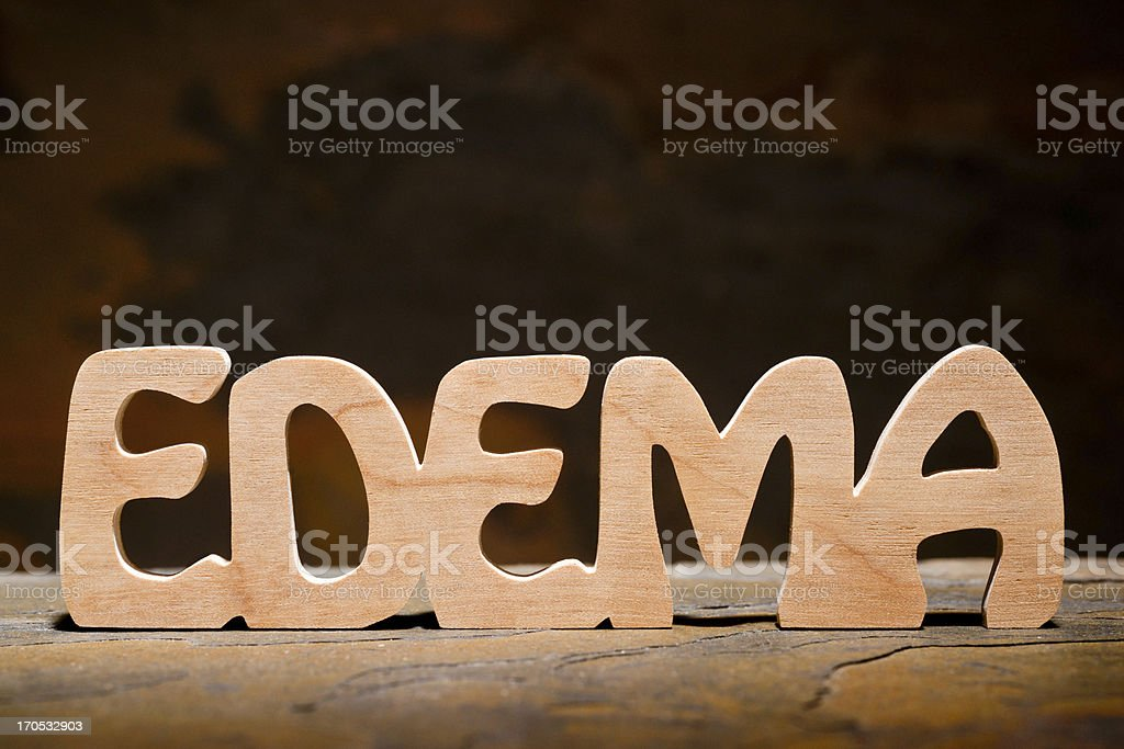 Edema: Letters Handcut from Wood stock photo