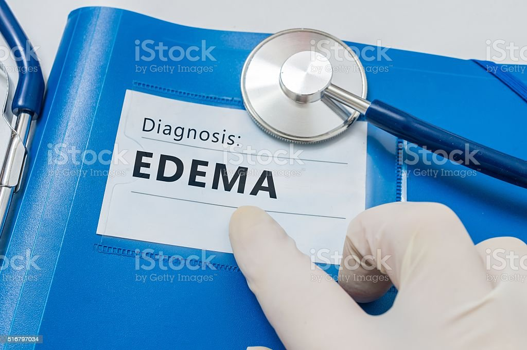 Edema - lymphatic diagnosis on blue folder with stethoscope. stock photo