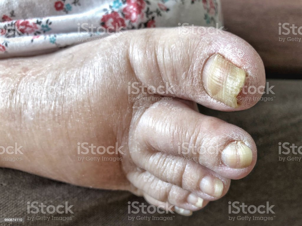 Edema On Foot With Damaged Nails Because Of Fungal Infection Stock ...
