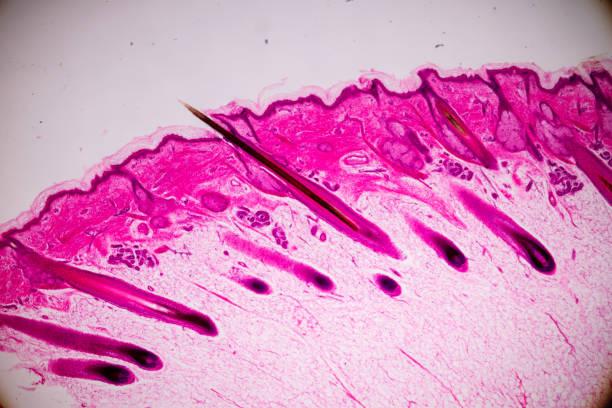 erziehungsanatomie und physiologie der menschlichen kopfhaut zeigen haarfoltikel unter dem mikroskopie im labor. - schichthaare stock-fotos und bilder
