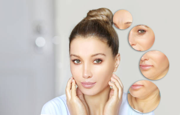 Effects of ageing,Frown/scowl lines ,Nasolabial folds,Neck ,Under eye circles,neck lines. Plastic Surgery Results Effects of ageing,Frown/scowl lines ,Nasolabial folds,Neck ,Under eye circles,neck lines. Plastic Surgery Results dark spots face stock pictures, royalty-free photos & images