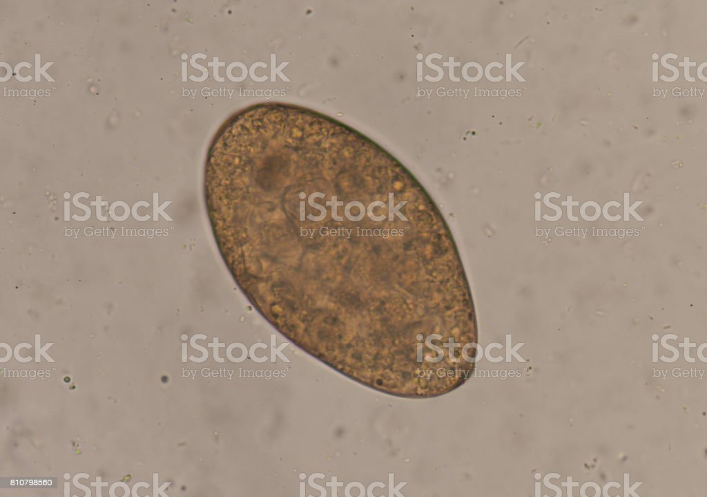 Egg of parasite in stool exam. stock photo