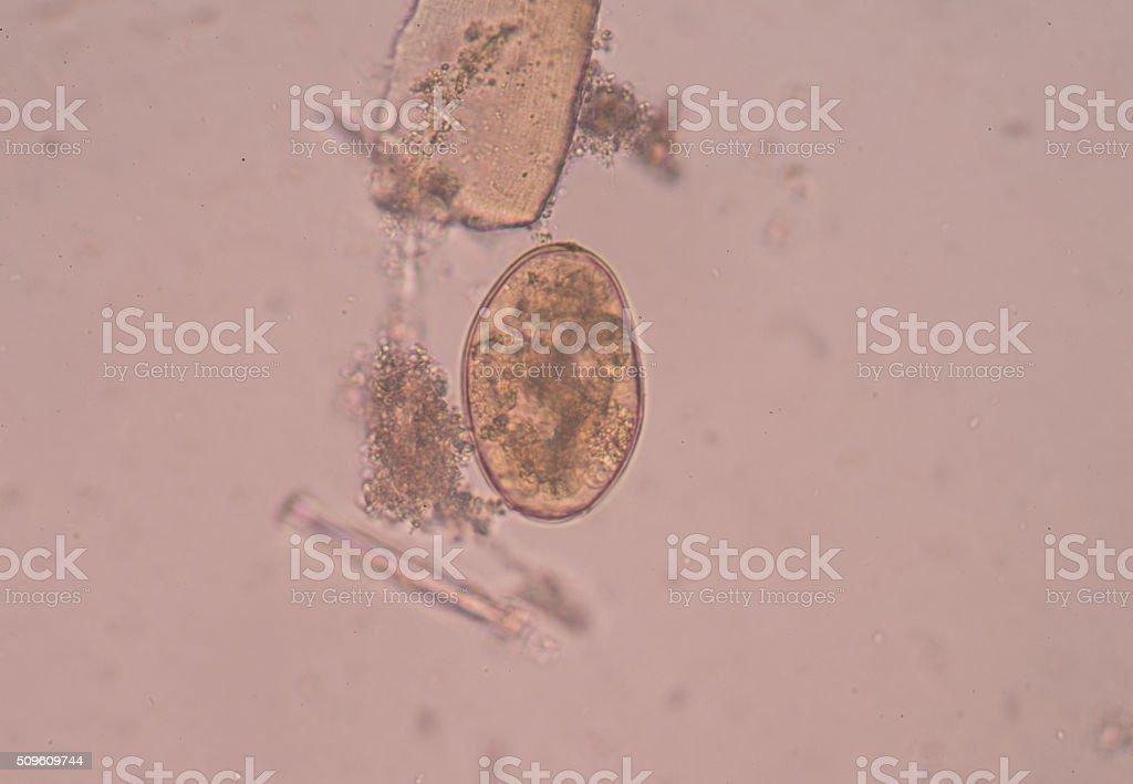 egg parasite in stool. stock photo