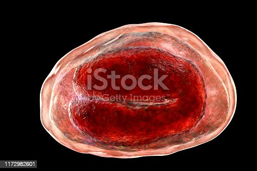 Egg of helminths Enterobius vermicularis containing worm larva. Threadworm which cause enterobiasis, 3D illustration