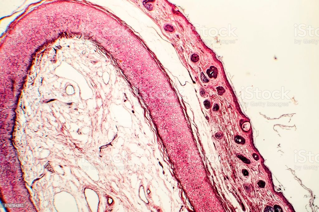 Elastic Cartilage Of Human Outer Ear Stock Photo Download Image