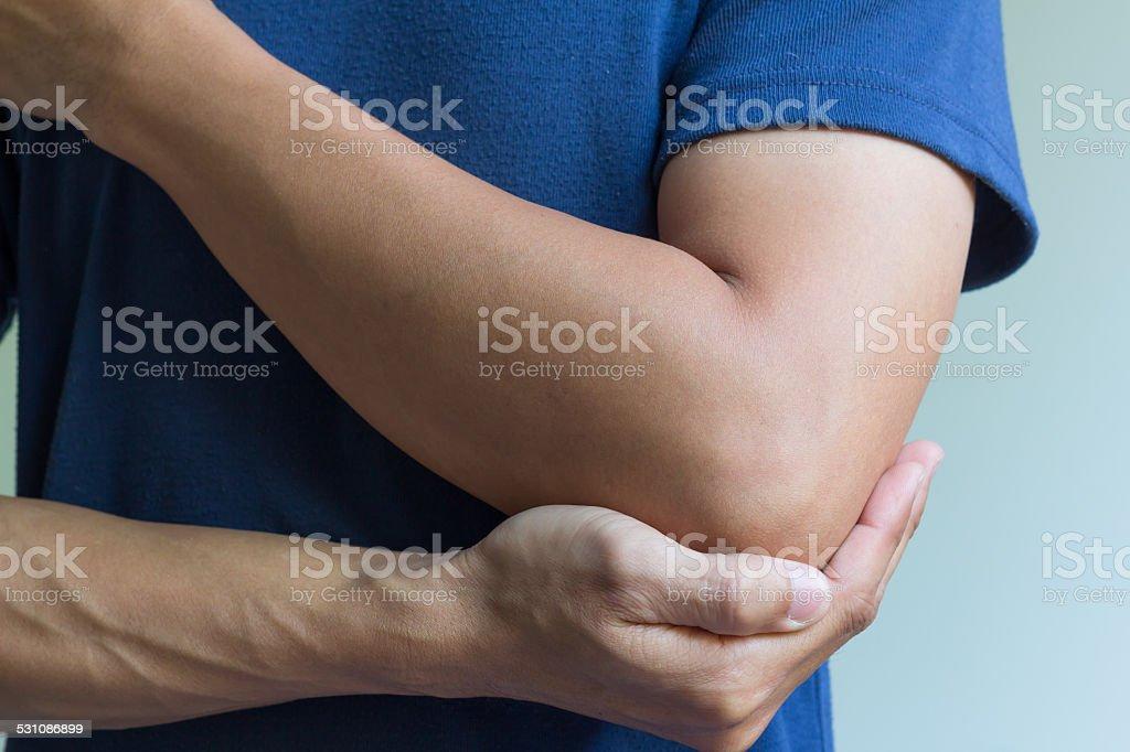 Elbow bone fracture stock photo