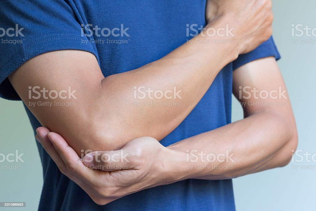 Elbow bone fracture stock photo