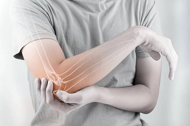 elbow bones injury stock photo