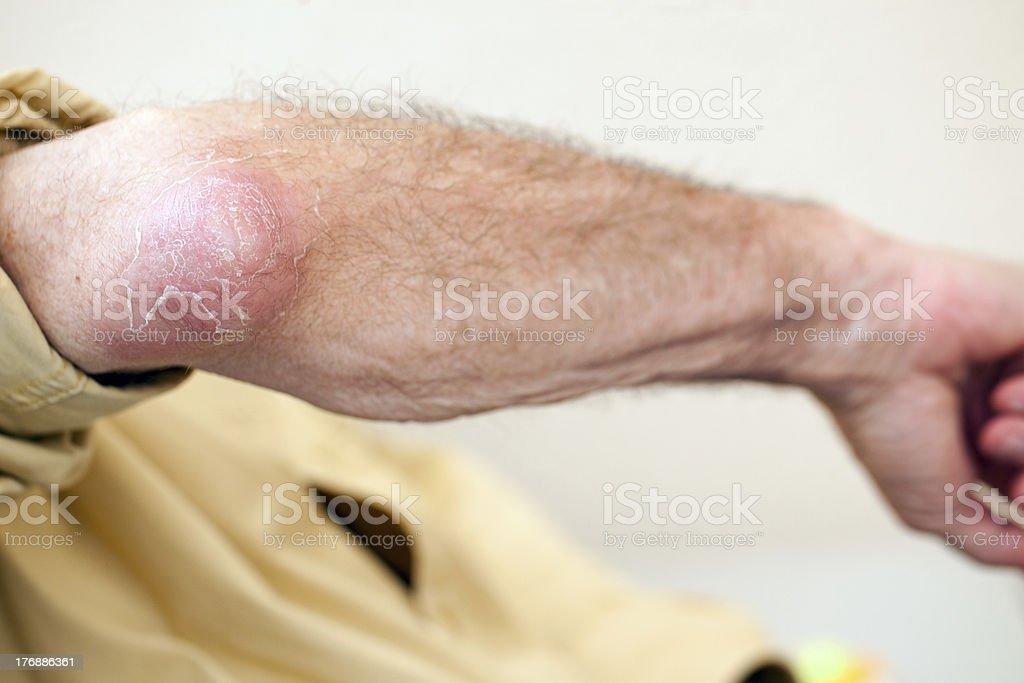 elbow infection stock photo