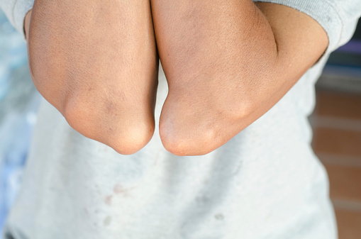 Elbow Of Patients With Gout Stock Photo - Download Image Now