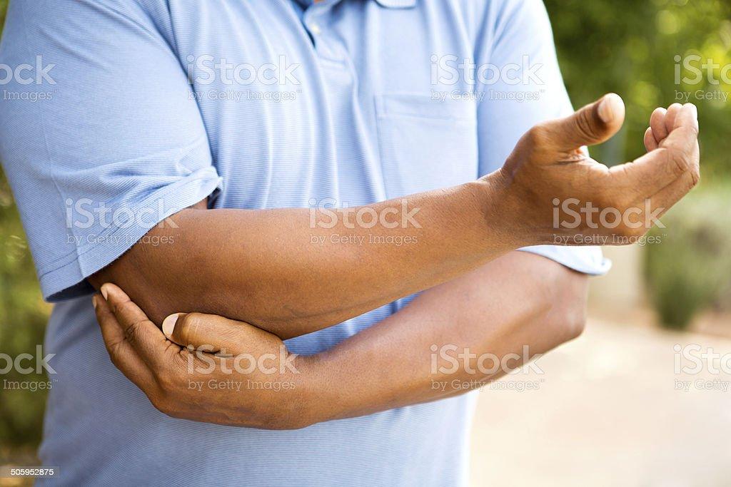 Elbow pain and arthritis stock photo