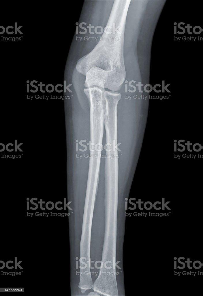 Elbow Xray Negative Stock Photo More Pictures Of Anatomy Istock