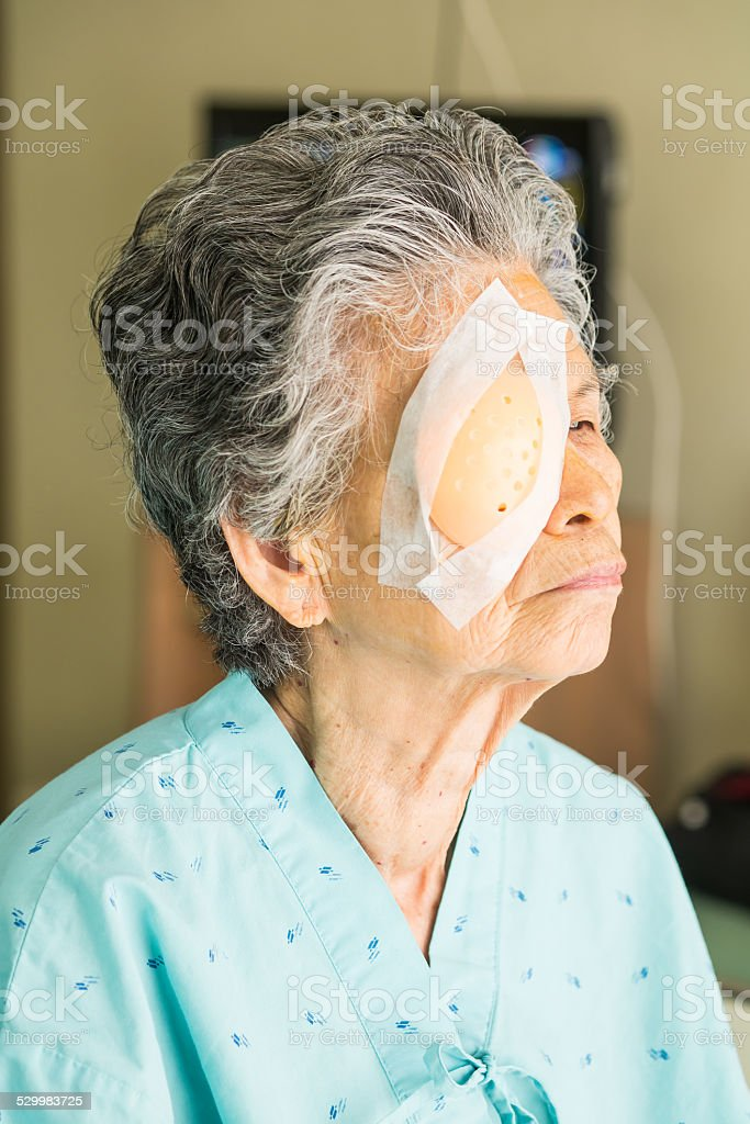 how to put on eye patch after cataract surgery