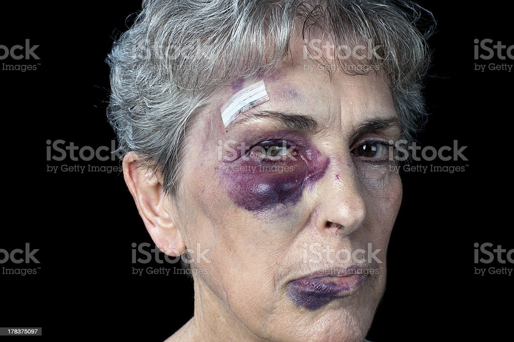 Elderly abuse stock photo