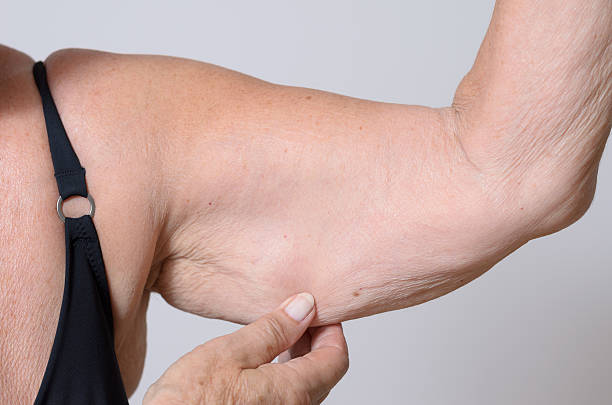 Elderly lady displaying the loose skin on her arm bildbanksfoto
