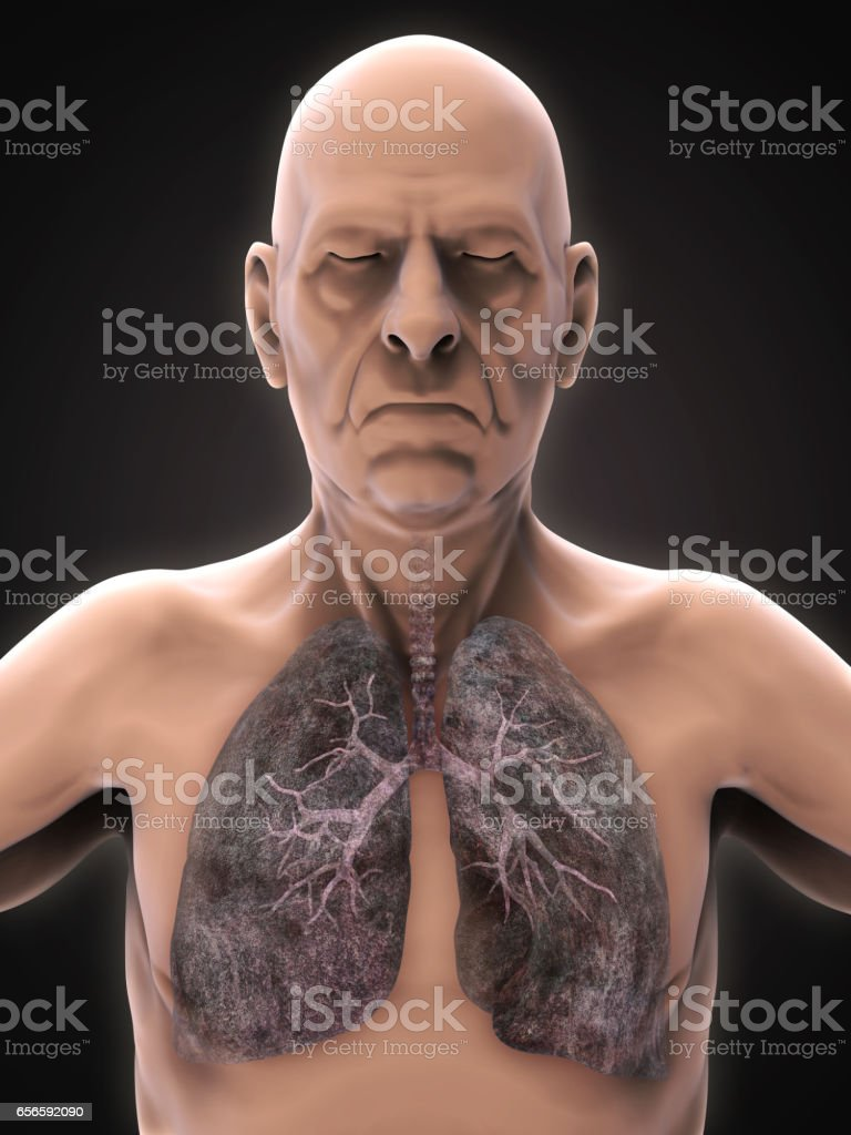 Elderly Male with Lung Cancer Illustration - foto de stock