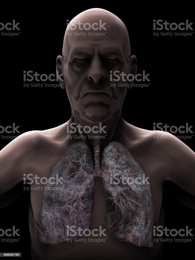 Ältere Männchen mit Lunge-Krebs-Illustration – Foto