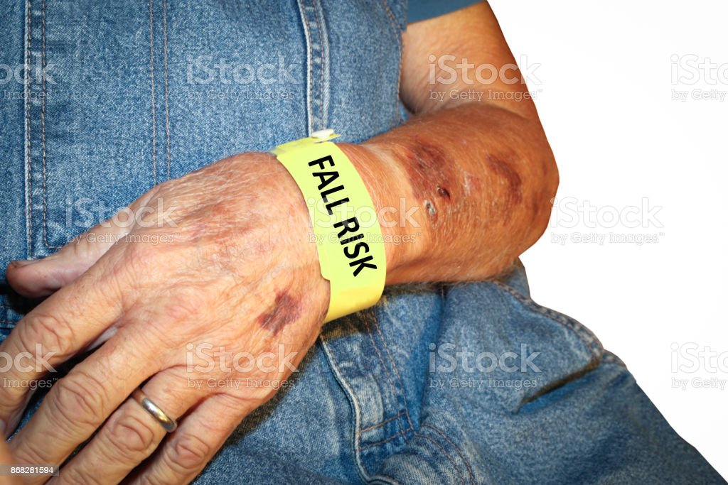 Elderly Man Wearing Fall Risk Bracelet with bruises stock photo