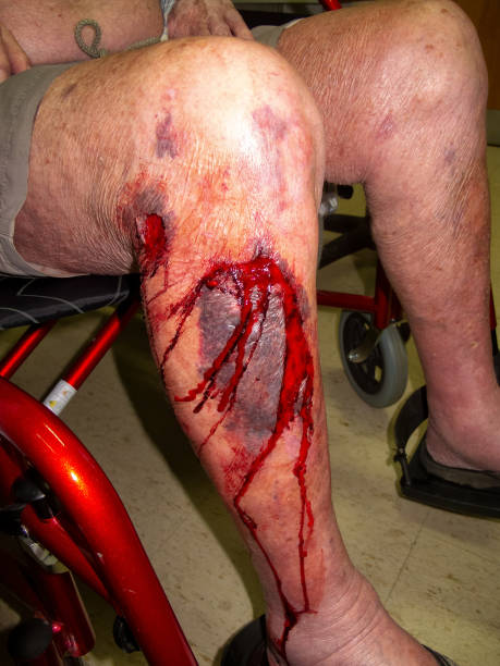 Elderly man with severe bleeding leg wounds sitting in a wheelchair stock photo