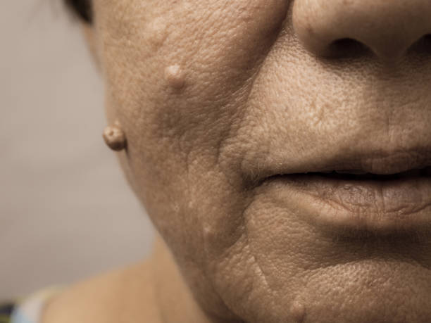Elderly pensioner female, dermal fibroma closeup. Details of senior woman face. Elderly pensioner female, dermal fibroma close up. wart stock pictures, royalty-free photos & images