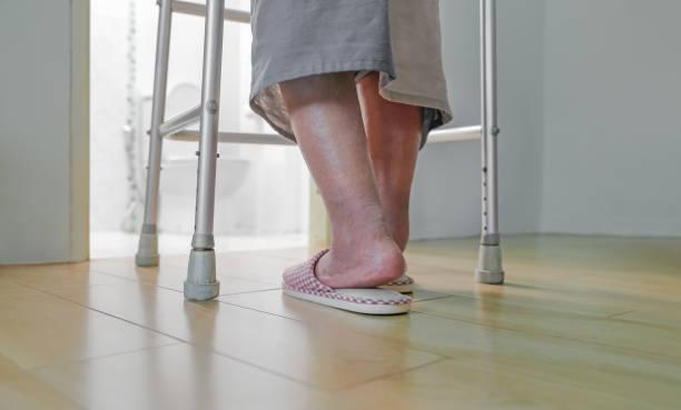 Ältere geschwollene Füße oder Ödem bein gehen ins Badezimmer – Foto