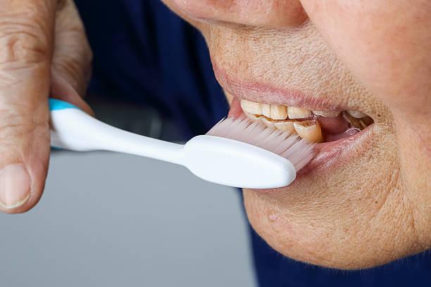 elderly tooth attrition stock photo
