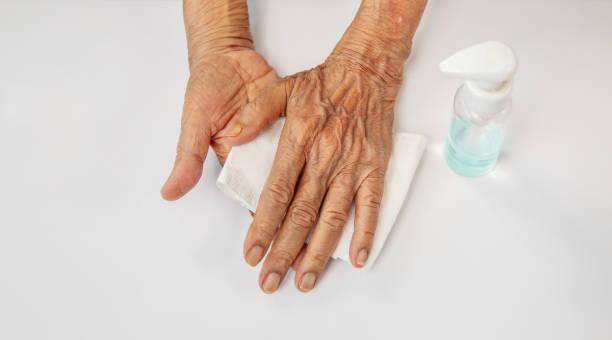 Ältere Frau, die Alkohol-Gel-Reinigungshände aufträgt, um vor Coronavirus covid-19 zu schützen – Foto