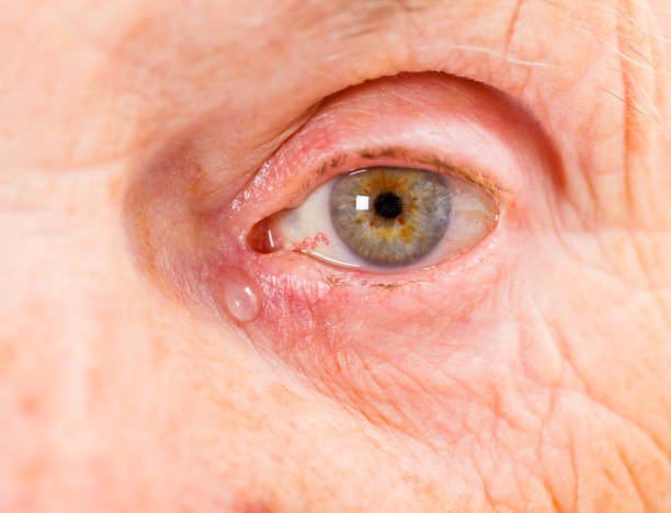 Elderly woman eye Close up photo of elderly woman eye exocrine gland stock pictures, royalty-free photos & images