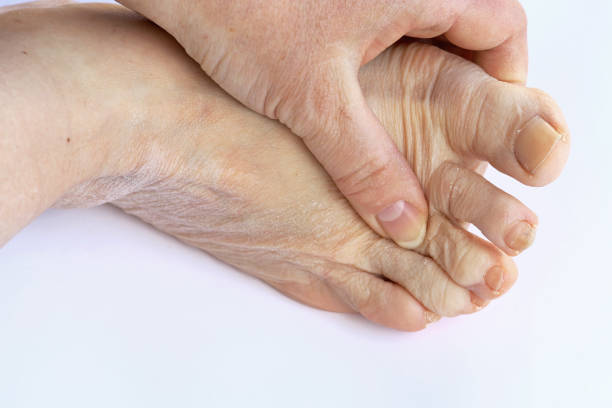 Elderly woman has pain in the feet and toes stock photo