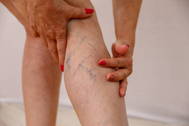 elderly woman shows varicose varicose veins of eldelry woman. biological process stock pictures, royalty-free photos & images