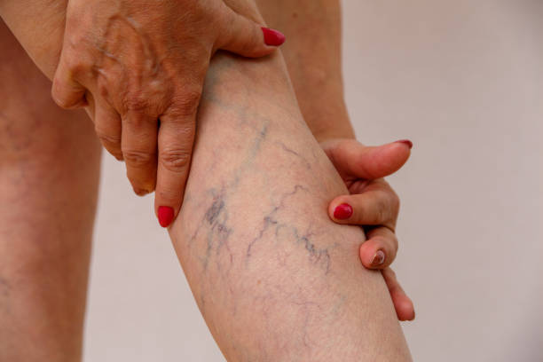 elderly woman shows varicose varicose veins of eldelry woman. invertebrate stock pictures, royalty-free photos & images