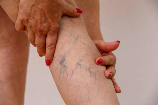 oudere vrouw toont spat - bloedvat stockfoto's en -beelden