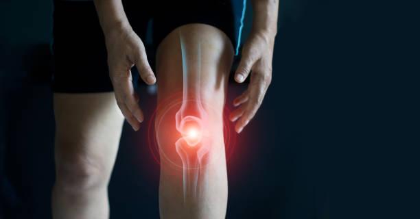 mulher idosa que sofre da dor no joelho. problemas do tendão e inflamação comum no fundo escuro. - articulação humana - fotografias e filmes do acervo