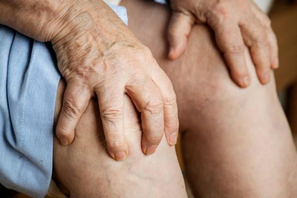 Elderly woman suffering knee pain Elderly woman suffering knee pain gout stock pictures, royalty-free photos & images