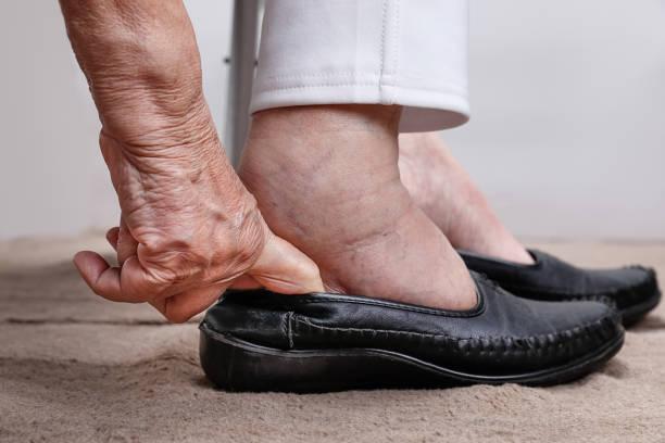 ältere frau geschwollene füße schuhe anziehen - 70 jahre kleidung stock-fotos und bilder