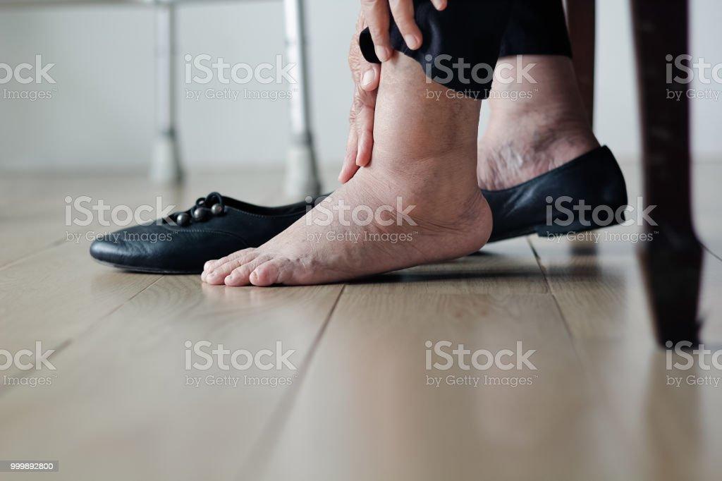 Ältere Frau geschwollene Füße Schuhe anziehen – Foto