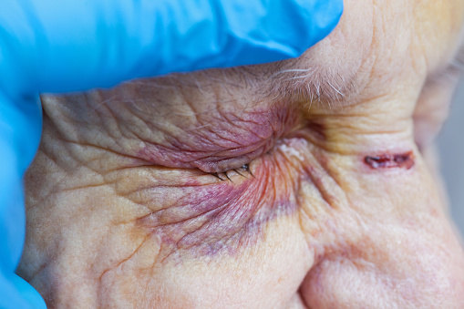 istock Elderly woman's injured eye & nurse's fingers 841453550