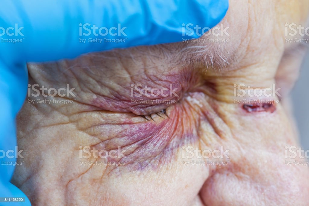 Elderly woman's injured eye & nurse's fingers stock photo