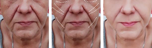 äldre kvinnans rynkor ansikte före och efter korrigering förfaranden - filler swollen bildbanksfoton och bilder