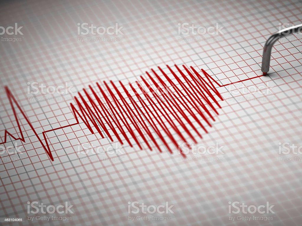 ECG. Electrocardiogram and heart  beat shape. stock photo