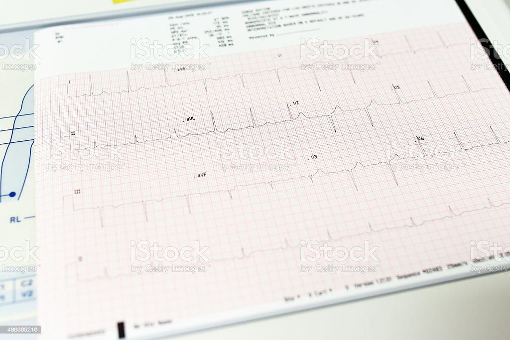 Electrocardiogram close-up stock photo