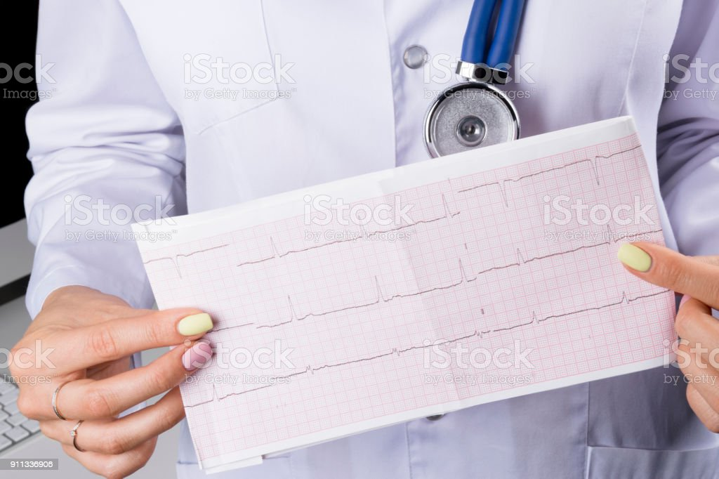 Electrocardiogram, ecg in hand of a female doctor. Medical health care. Clinic cardiology heart rhythm and pulse test closeup. Cardiogram printout. stock photo