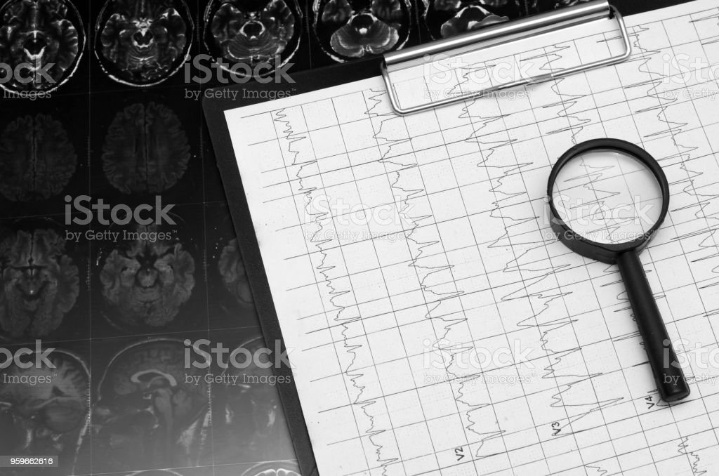 Gráfico del ELECTROCARDIOGRAMA ECG, análisis de corazón. Portapapeles negro - Foto de stock de Arritmia cardíaca libre de derechos